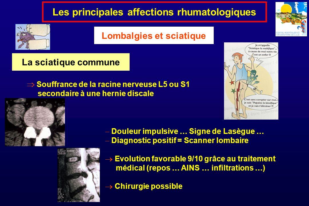Les principales affections rhumatologiques Lombalgies et sciatique Douleur impulsive … Signe de Lasègue … Diagnostic positif = Scanner lombaire Evolut