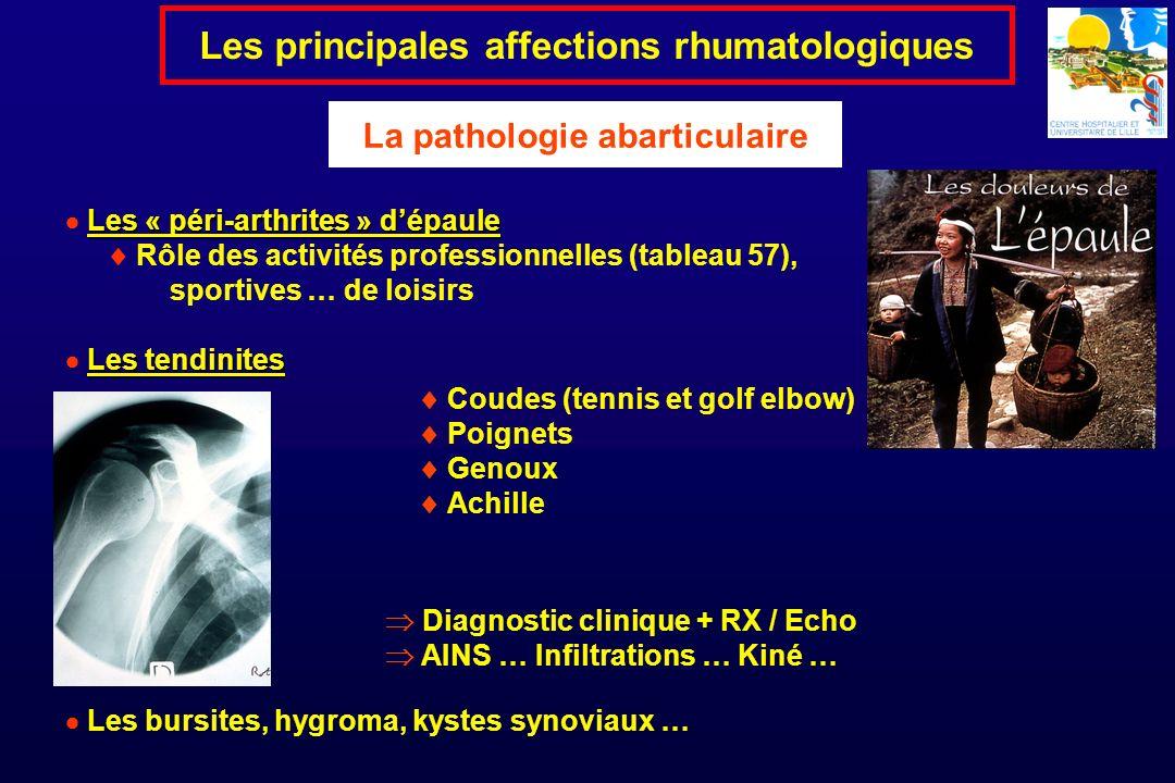 Les principales affections rhumatologiques La pathologie abarticulaire Les « péri-arthrites » dépaule Rôle des activités professionnelles (tableau 57)