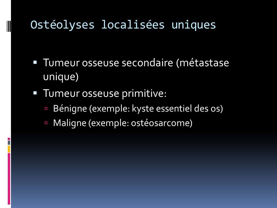 Ostéolyses localisées uniques Tumeur osseuse secondaire (métastase unique) Tumeur osseuse primitive: Bénigne (exemple: kyste essentiel des os) Maligne (exemple: ostéosarcome)