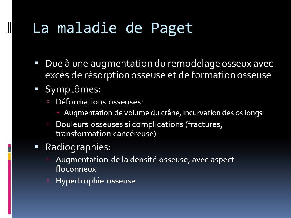 La maladie de Paget Due à une augmentation du remodelage osseux avec excès de résorption osseuse et de formation osseuse Symptômes: Déformations osseu