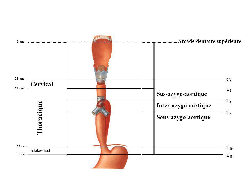 Sus-azygo-aortique Inter-azygo-aortique Sous-azygo-aortique Arcade dentaire supérieure 0 cm 15 cm 21 cm 37 cm 40 cm C6C6 T2T2 T5T5 T 10 T 11 T4T4 Thor