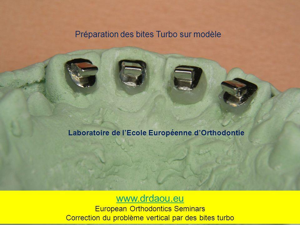 Préparation des bites Turbo sur modèle Laboratoire de lEcole Européenne dOrthodontie www.drdaou.eu European Orthodontics Seminars Correction du problème vertical par des bites turbo