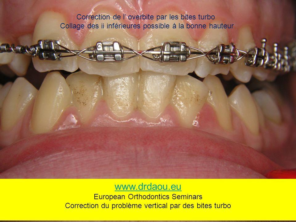 Correction de l overbite par les bites turbo Collage des ii inférieures possible à la bonne hauteur www.drdaou.eu European Orthodontics Seminars Correction du problème vertical par des bites turbo