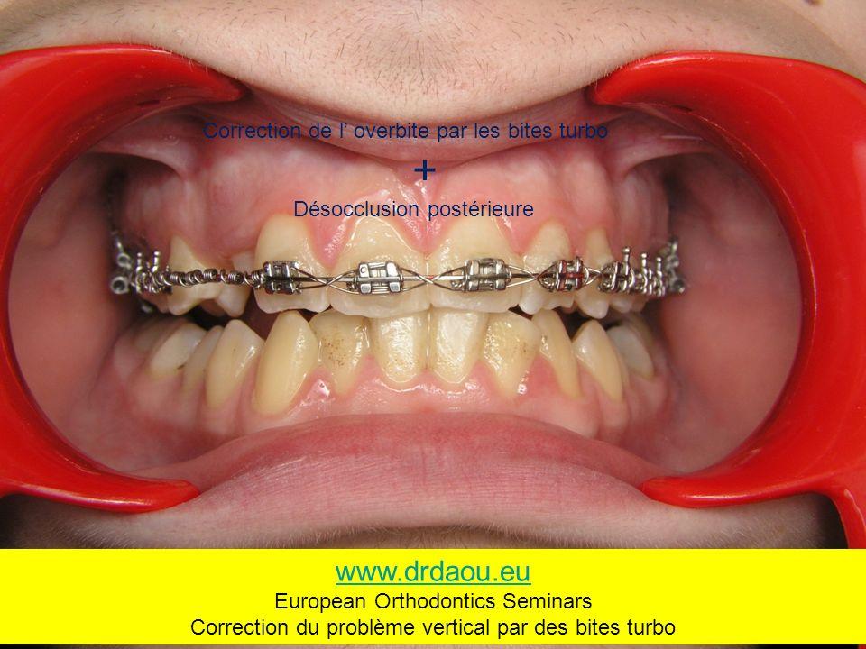 Correction de l overbite par les bites turbo + Désocclusion postérieure www.drdaou.eu European Orthodontics Seminars Correction du problème vertical par des bites turbo
