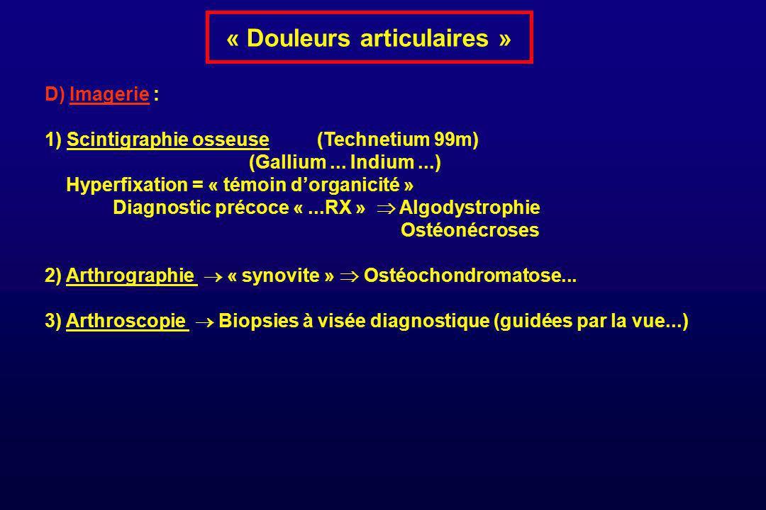 « Douleurs articulaires » D) Imagerie : 1) Scintigraphie osseuse (Technetium 99m) (Gallium... Indium...) Hyperfixation = « témoin dorganicité » Diagno