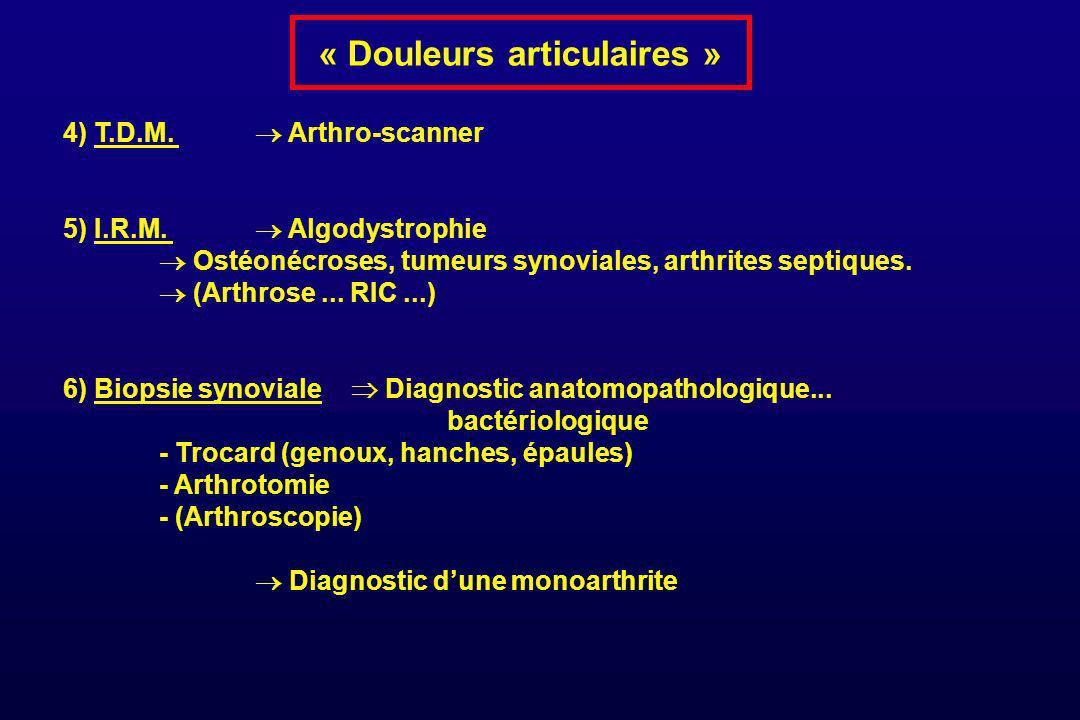 « Douleurs articulaires » 4) T.D.M. Arthro-scanner 5) I.R.M. Algodystrophie Ostéonécroses, tumeurs synoviales, arthrites septiques. (Arthrose... RIC..