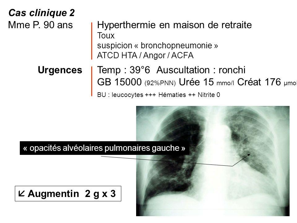 Cas clinique 2 Mme P. 90 ansHyperthermie en maison de retraite Toux suspicion « bronchopneumonie » ATCD HTA / Angor / ACFA UrgencesTemp : 39°6 Auscult
