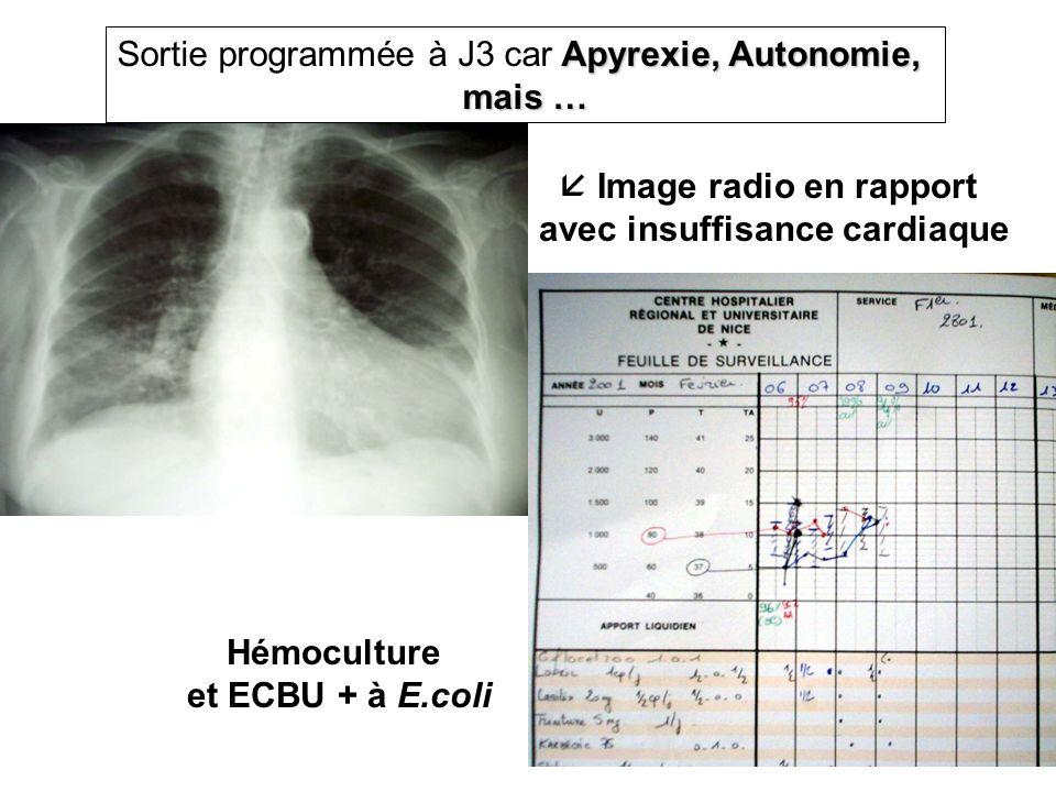 Apyrexie, Autonomie, Sortie programmée à J3 car Apyrexie, Autonomie, mais … Hémoculture et ECBU + à E.coli Image radio en rapport avec insuffisance ca