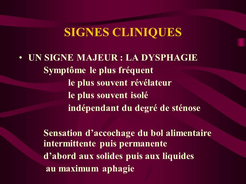 SIGNES CLINIQUES UN SIGNE MAJEUR : LA DYSPHAGIE Symptôme le plus fréquent le plus souvent révélateur le plus souvent isolé indépendant du degré de sté