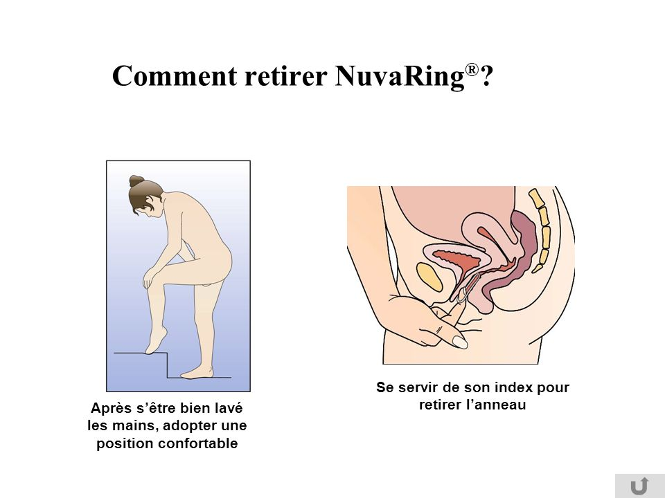 comment mettre nuvaring