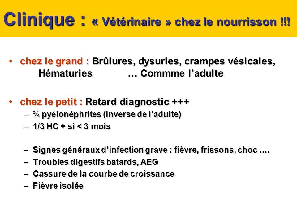Clinique : « Vétérinaire » chez le nourrisson !!! chez le grand : Brûlures, dysuries, crampes vésicales, Hématuries… Commme ladultechez le grand : Brû