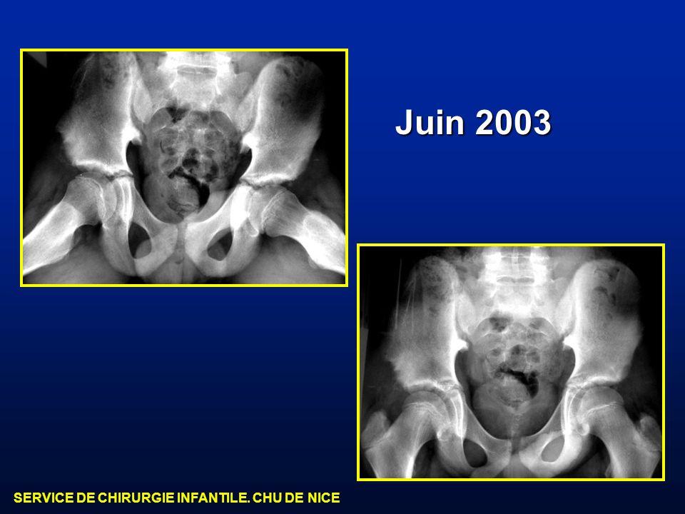 SERVICE DE CHIRURGIE INFANTILE. CHU DE NICE Juin 2003
