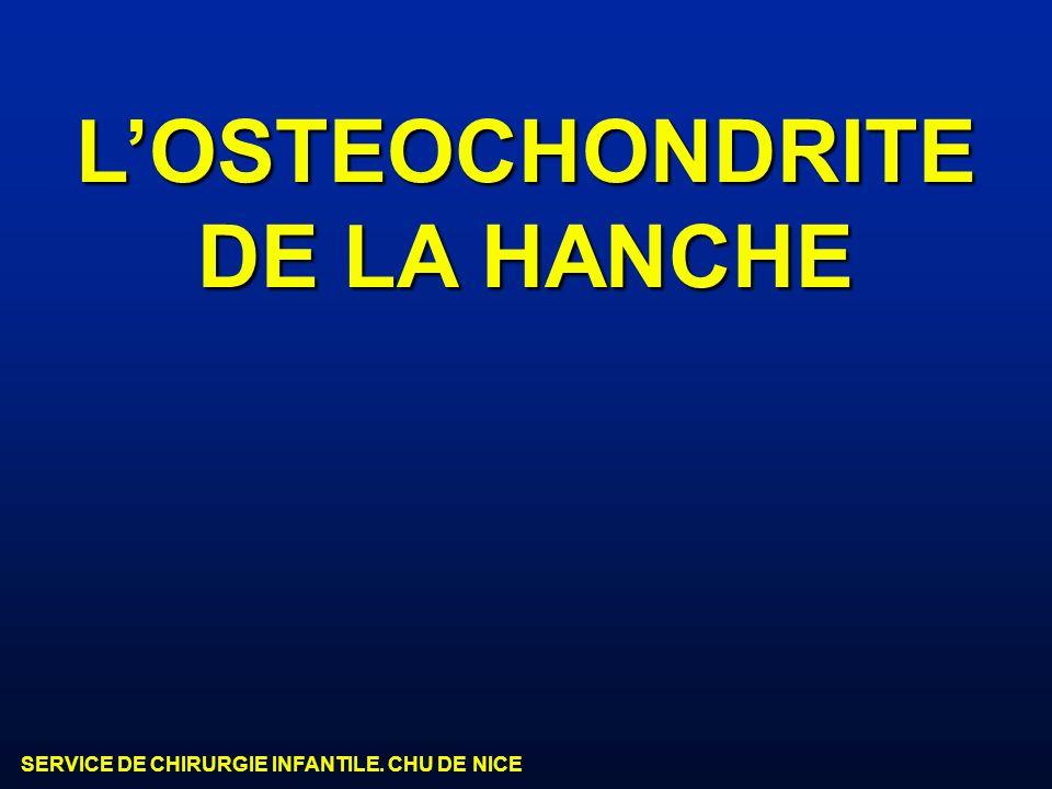 SERVICE DE CHIRURGIE INFANTILE. CHU DE NICE LOSTEOCHONDRITE DE LA HANCHE