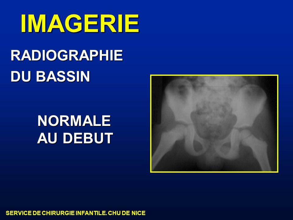 SERVICE DE CHIRURGIE INFANTILE. CHU DE NICE IMAGERIE RADIOGRAPHIE DU BASSIN NORMALE AU DEBUT