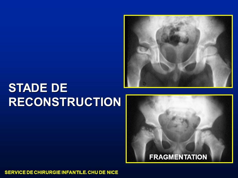 SERVICE DE CHIRURGIE INFANTILE. CHU DE NICE STADE DE RECONSTRUCTION FRAGMENTATION