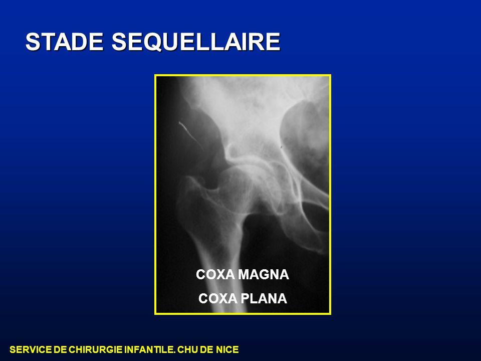 SERVICE DE CHIRURGIE INFANTILE. CHU DE NICE STADE SEQUELLAIRE COXA MAGNA COXA PLANA