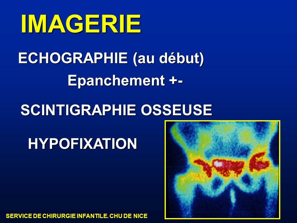 SERVICE DE CHIRURGIE INFANTILE. CHU DE NICE ECHOGRAPHIE (au début) SCINTIGRAPHIE OSSEUSE IMAGERIE HYPOFIXATION Epanchement +-