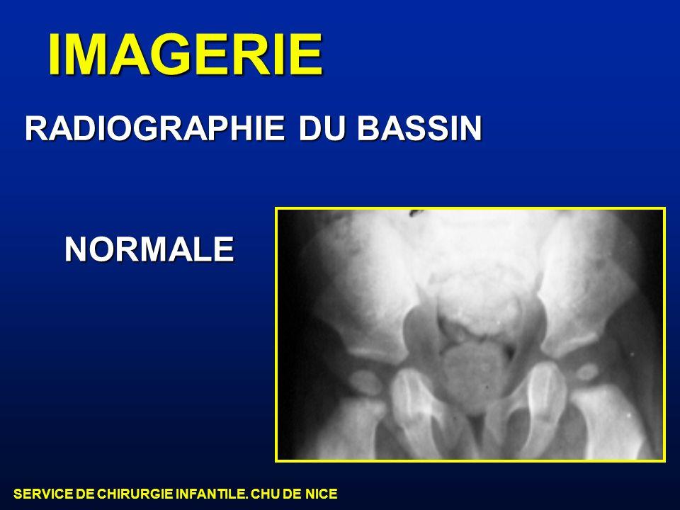 SERVICE DE CHIRURGIE INFANTILE. CHU DE NICE IMAGERIE RADIOGRAPHIE DU BASSIN NORMALE