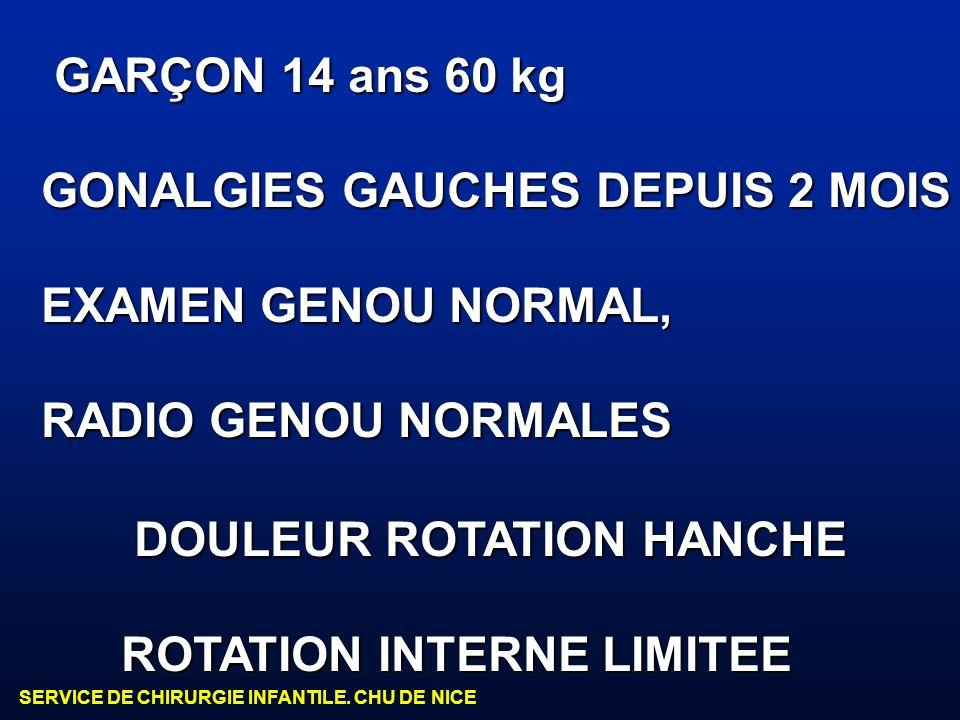 SERVICE DE CHIRURGIE INFANTILE. CHU DE NICE GARÇON 14 ans 60 kg GARÇON 14 ans 60 kg GONALGIES GAUCHES DEPUIS 2 MOIS EXAMEN GENOU NORMAL, RADIO GENOU N