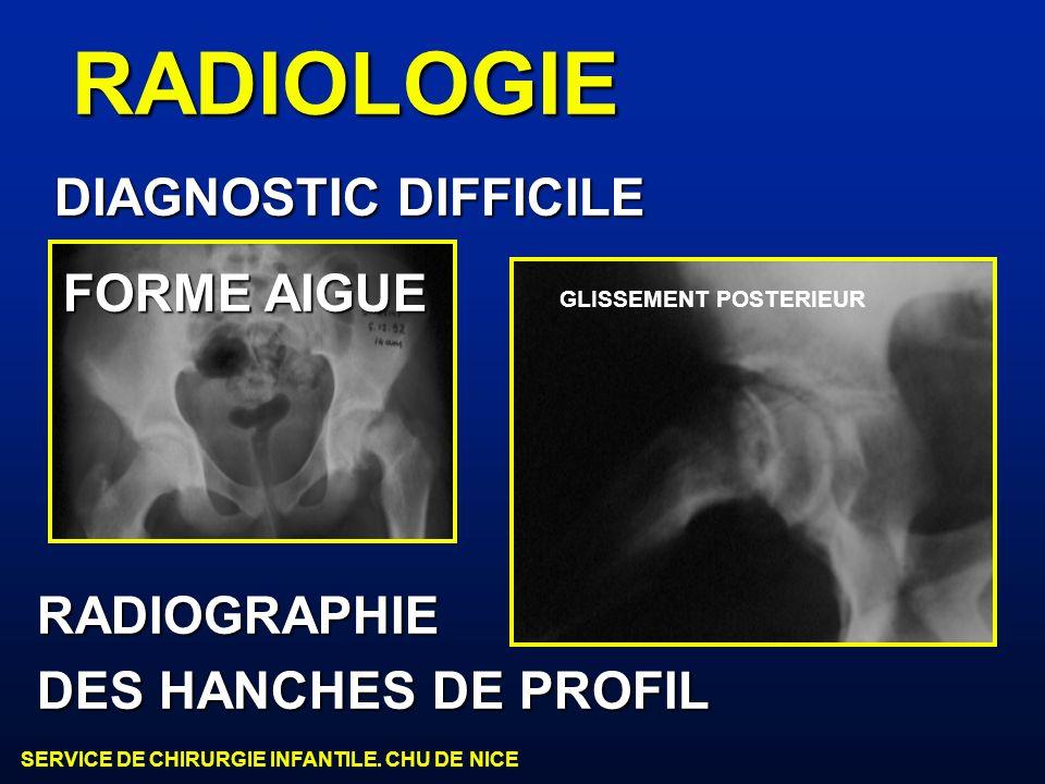 SERVICE DE CHIRURGIE INFANTILE. CHU DE NICE RADIOLOGIE RADIOGRAPHIE DES HANCHES DE PROFIL GLISSEMENT POSTERIEUR DIAGNOSTIC DIFFICILE FORME AIGUE