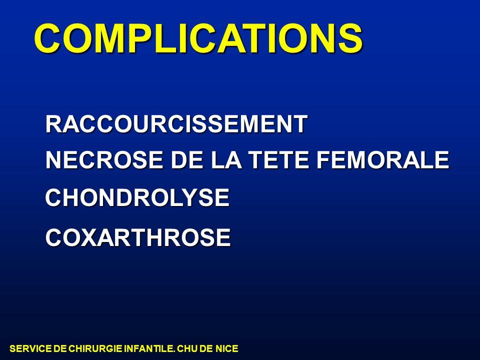 SERVICE DE CHIRURGIE INFANTILE. CHU DE NICE COMPLICATIONS NECROSE DE LA TETE FEMORALE CHONDROLYSE COXARTHROSE RACCOURCISSEMENT