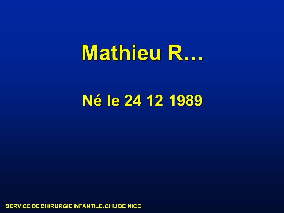 SERVICE DE CHIRURGIE INFANTILE. CHU DE NICE Mathieu R… Né le 24 12 1989