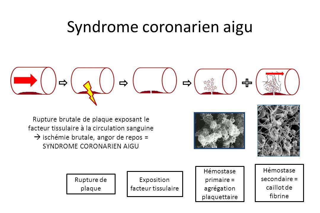 Syndrome coronarien aigu Rupture de plaque Exposition facteur tissulaire Hémostase primaire = agrégation plaquettaire Hémostase secondaire = caillot d