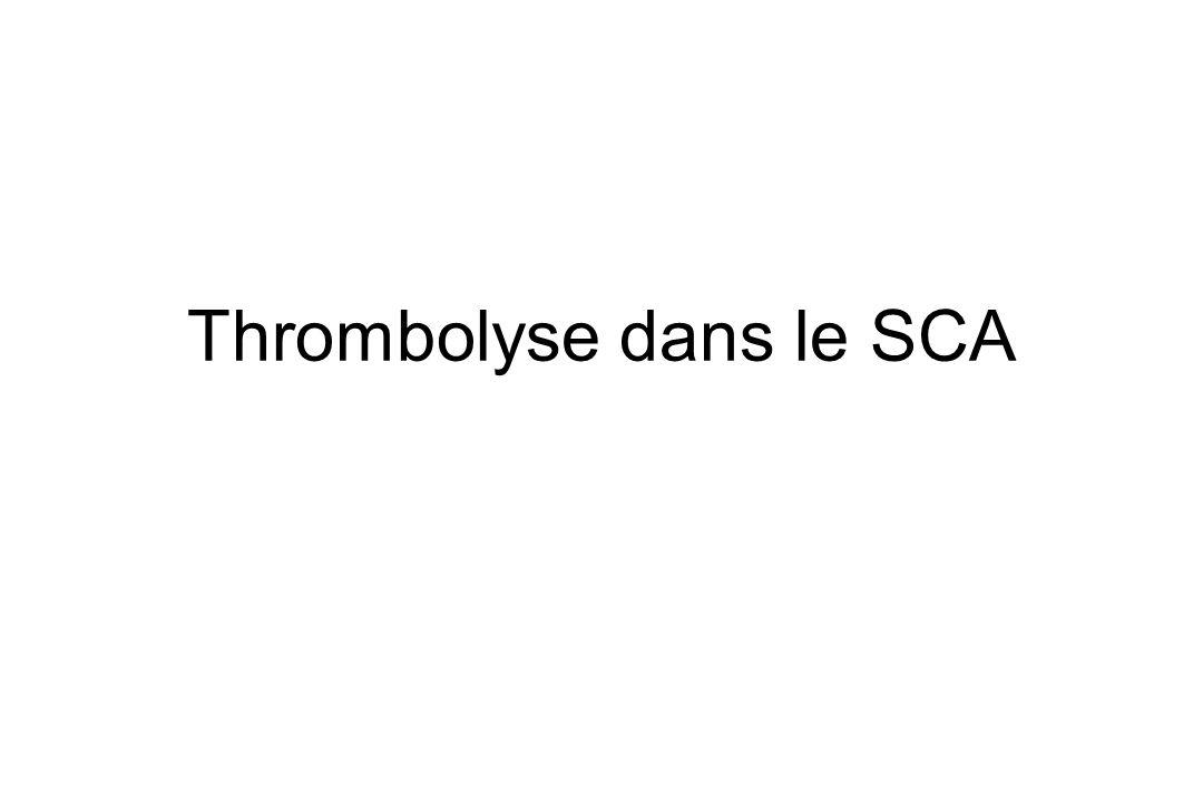 Thrombolyse dans le SCA