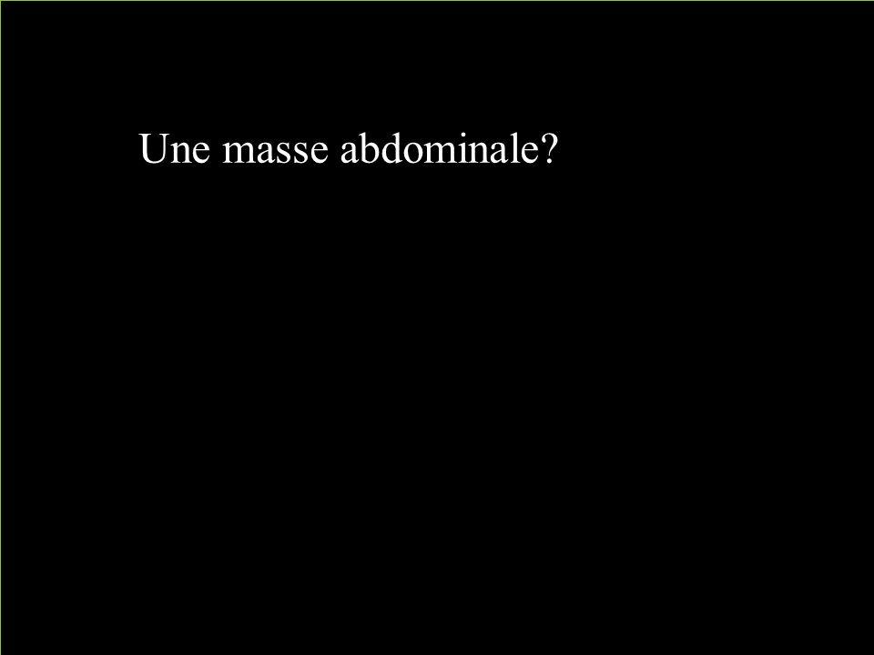 Une masse abdominale?