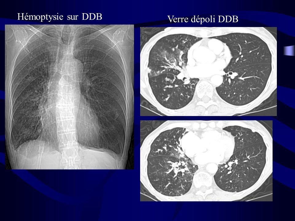 Hémoptysie sur DDB Verre dépoli DDB