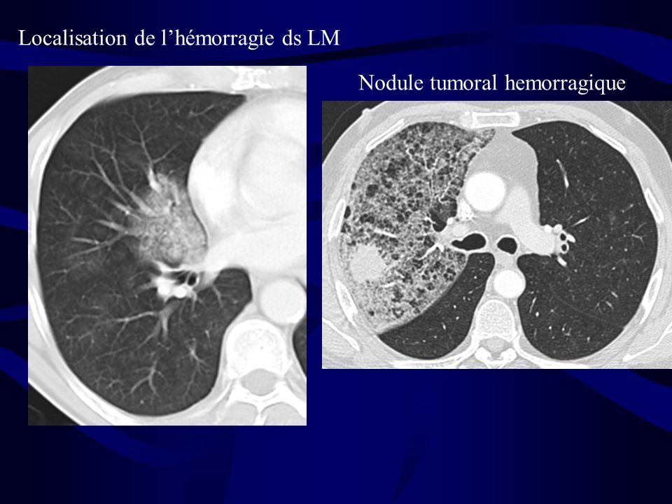 Nodule tumoral hemorragique Localisation de lhémorragie ds LM