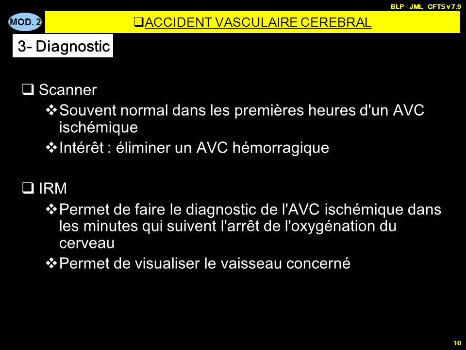 MOD. 2 BLP - JML - CFTS v 7.9 10 ACCIDENT VASCULAIRE CEREBRAL Scanner Souvent normal dans les premières heures d'un AVC ischémique Intérêt : éliminer