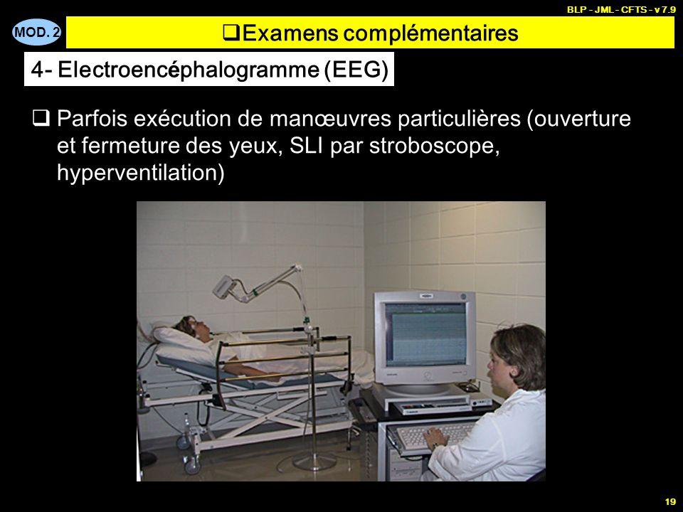 MOD. 2 BLP - JML - CFTS - v 7.9 19 Examens complémentaires Parfois exécution de manœuvres particulières (ouverture et fermeture des yeux, SLI par stro