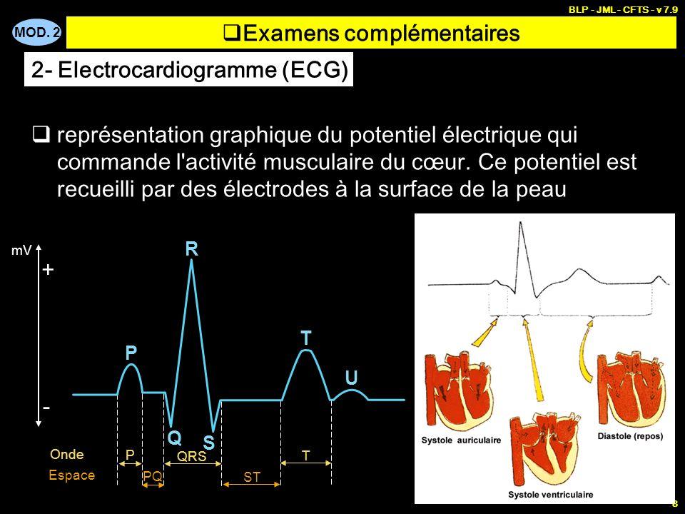 MOD. 2 BLP - JML - CFTS - v 7.9 8 Examens complémentaires représentation graphique du potentiel électrique qui commande l'activité musculaire du cœur.