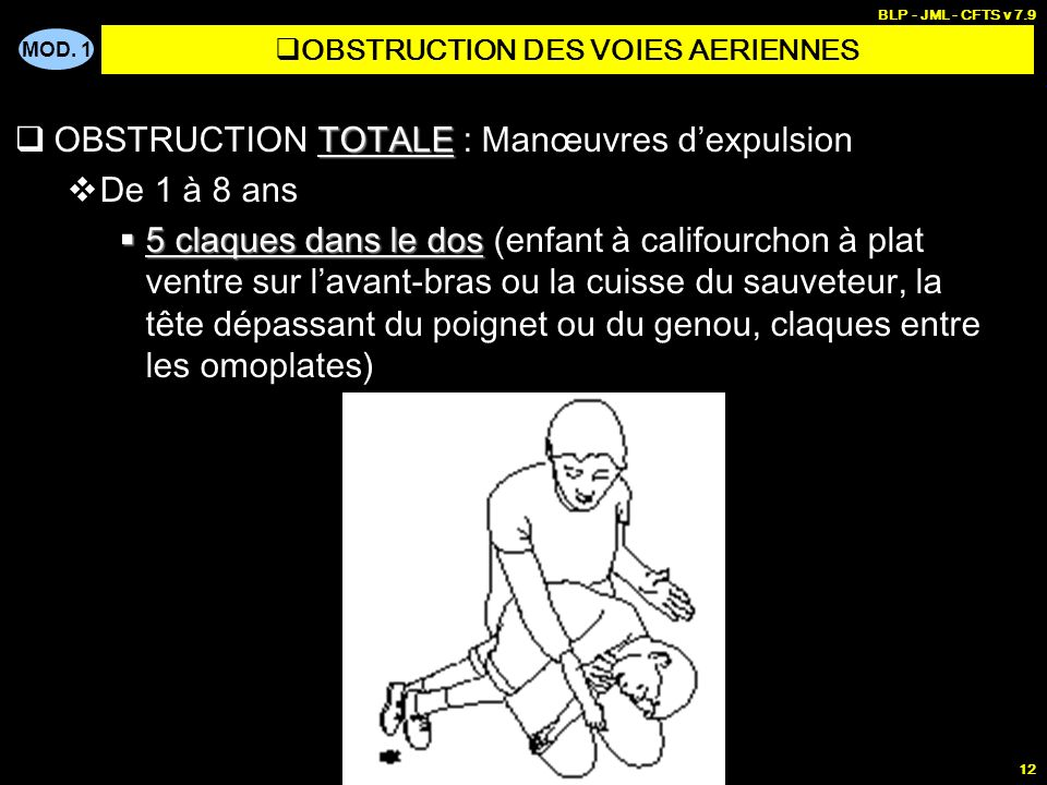 MOD. 1 BLP - JML - CFTS v 7.9 11 TOTALE OBSTRUCTION TOTALE : Manœuvres dexpulsion De 0 à 1 an 5 claques dans le dos 5 claques dans le dos (enfant à ca