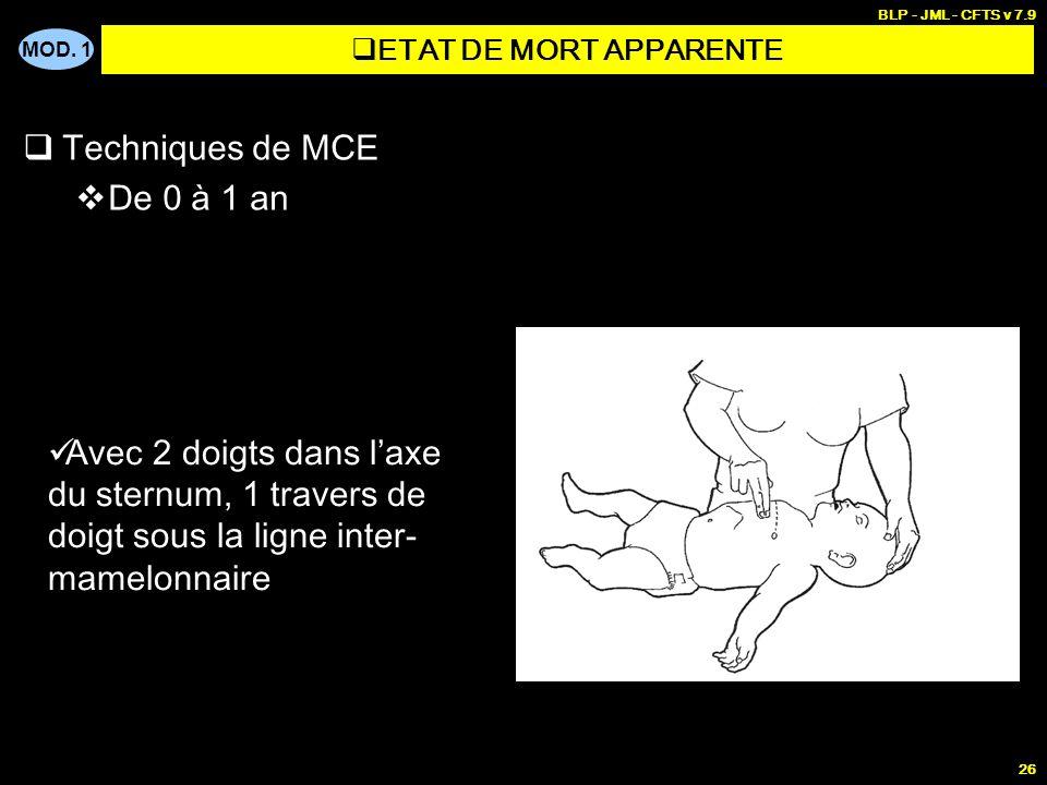 MOD. 1 BLP - JML - CFTS v 7.9 25 Techniques de MCE Installation si possible sur une table Déprimer le thorax de 2 à 3 cm À une fréquence de : 120 / mi