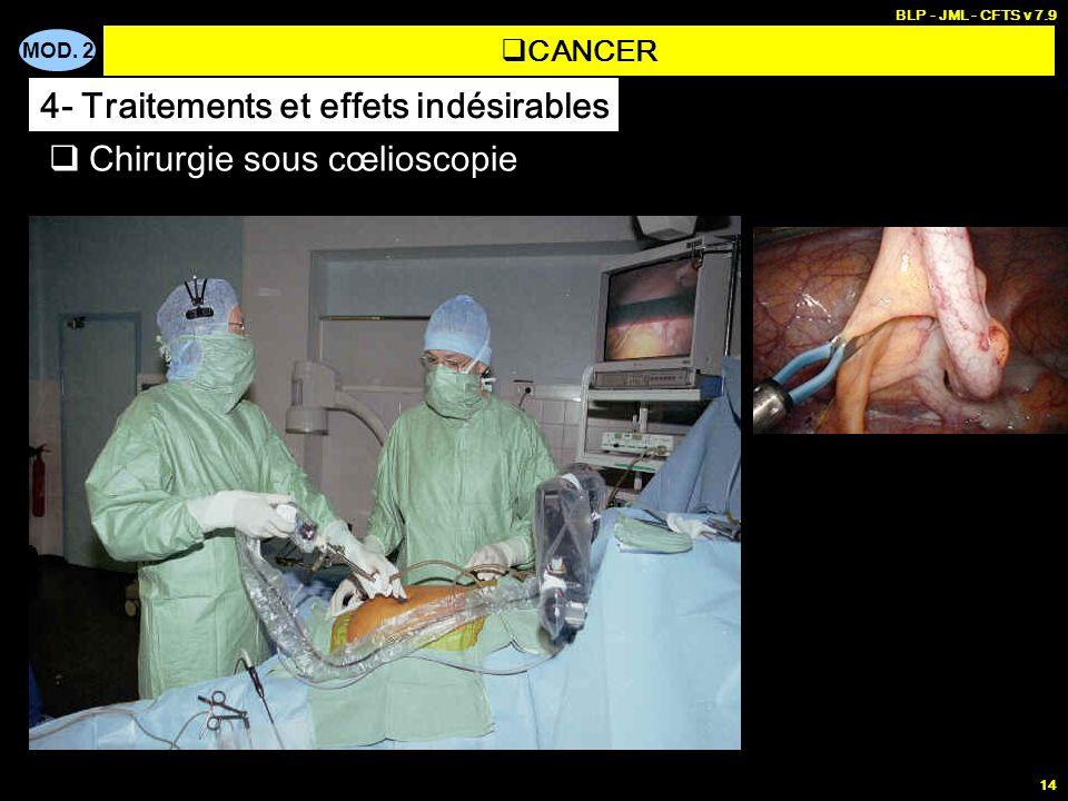 MOD. 2 BLP - JML - CFTS v 7.9 14 Chirurgie sous cœlioscopie CANCER 4- Traitements et effets indésirables