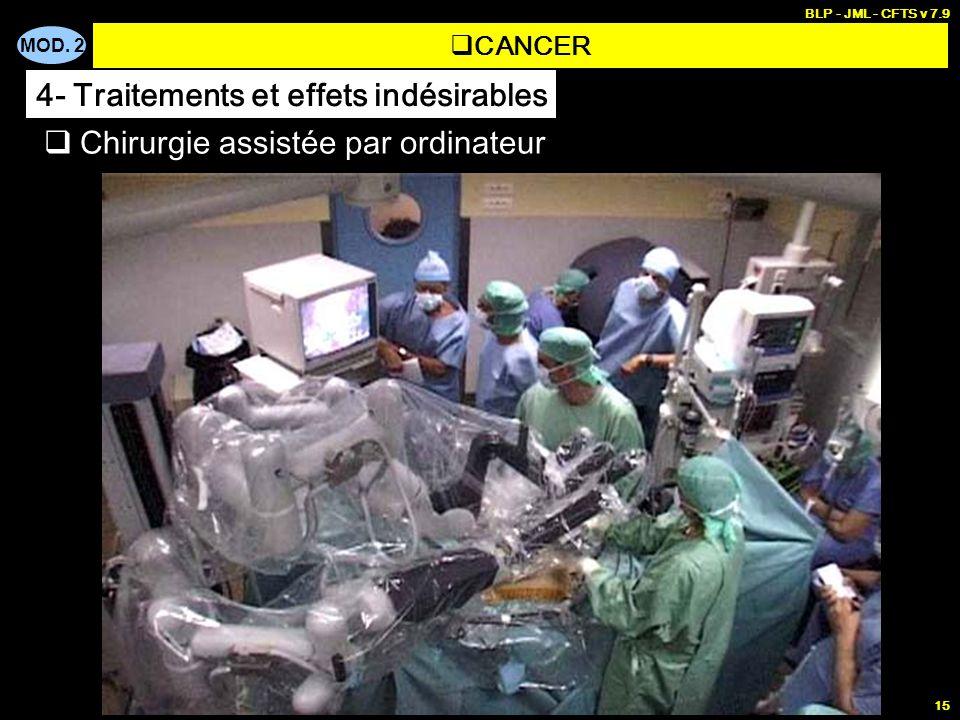 MOD. 2 BLP - JML - CFTS v 7.9 15 Chirurgie assistée par ordinateur CANCER 4- Traitements et effets indésirables