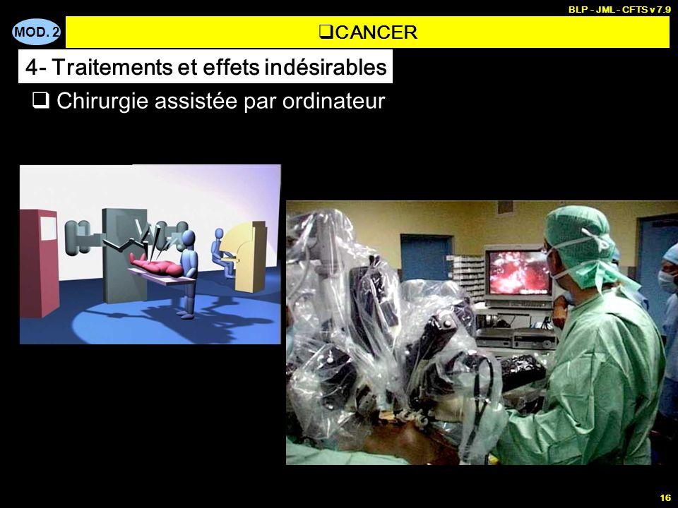 MOD. 2 BLP - JML - CFTS v 7.9 16 Chirurgie assistée par ordinateur CANCER 4- Traitements et effets indésirables
