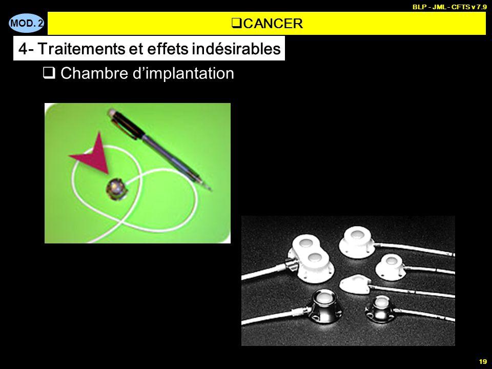 MOD. 2 BLP - JML - CFTS v 7.9 19 Chambre dimplantation CANCER 4- Traitements et effets indésirables