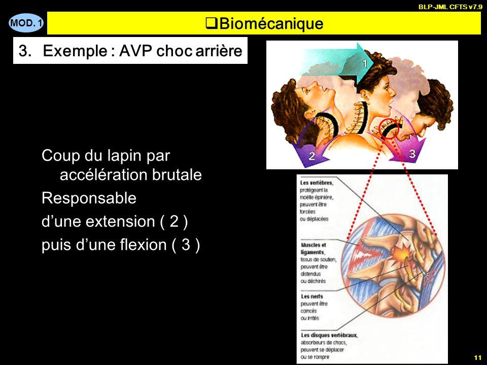 MOD. 1 BLP-JML CFTS v7.9 11 Biomécanique 3.Exemple : AVP choc arrière Coup du lapin par accélération brutale Responsable dune extension ( 2 ) puis dun