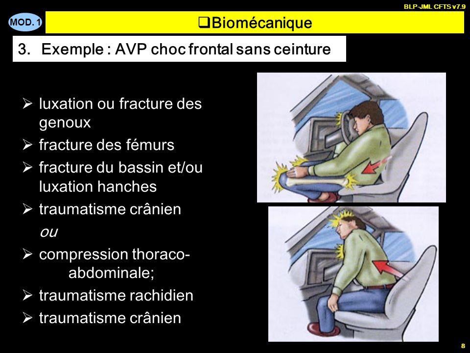 MOD. 1 BLP-JML CFTS v7.9 8 Biomécanique 3.Exemple : AVP choc frontal sans ceinture luxation ou fracture des genoux fracture des fémurs fracture du bas