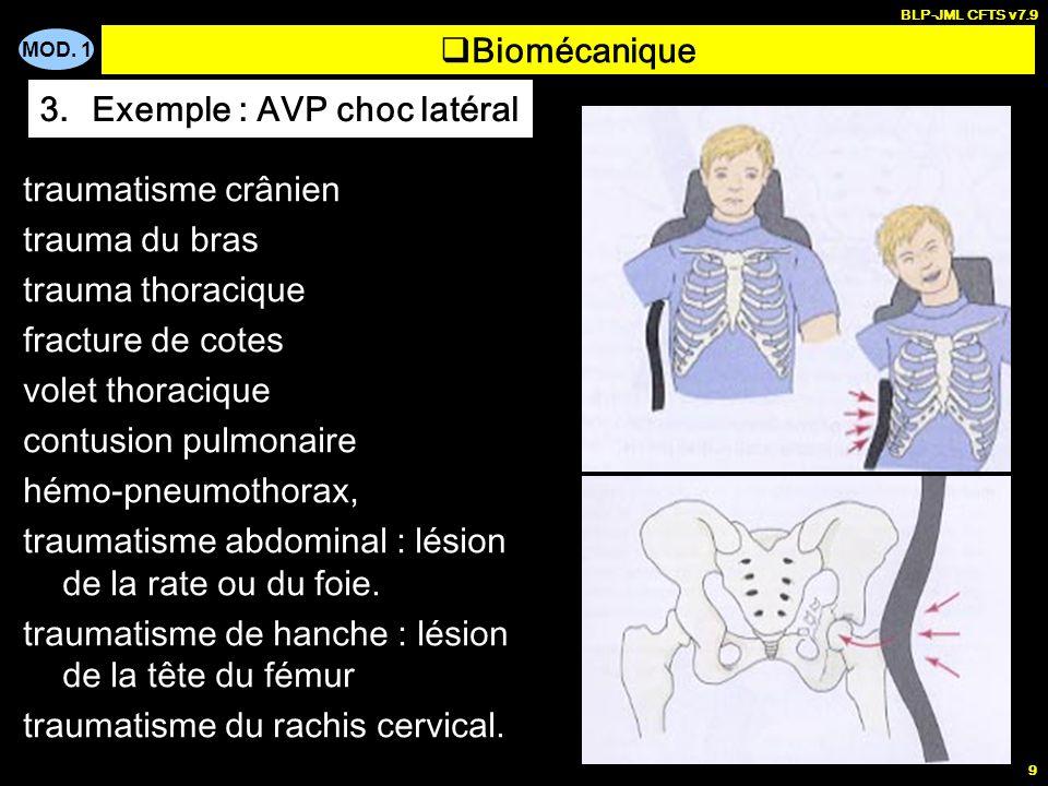 MOD. 1 BLP-JML CFTS v7.9 9 Biomécanique 3.Exemple : AVP choc latéral traumatisme crânien trauma du bras trauma thoracique fracture de cotes volet thor