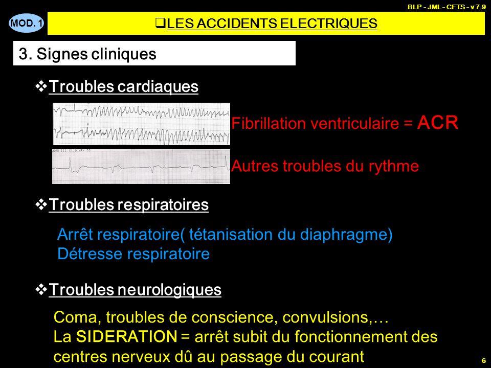 MOD. 1 BLP - JML - CFTS - v 7.9 6 3. Signes cliniques Troubles cardiaques Fibrillation ventriculaire = ACR Autres troubles du rythme Troubles respirat