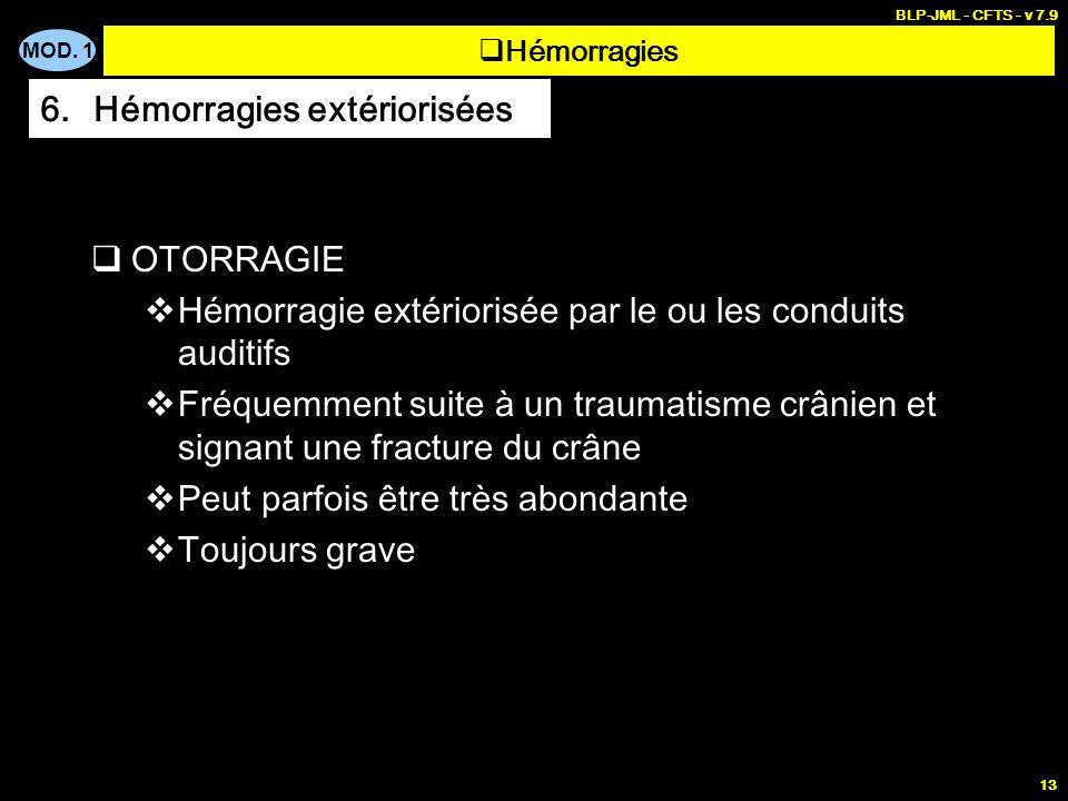 MOD. 1 BLP-JML - CFTS - v 7.9 13 OTORRAGIE Hémorragie extériorisée par le ou les conduits auditifs Fréquemment suite à un traumatisme crânien et signa