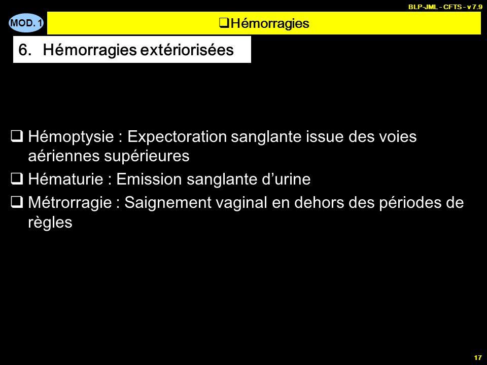 MOD. 1 BLP-JML - CFTS - v 7.9 17 Hémoptysie : Expectoration sanglante issue des voies aériennes supérieures Hématurie : Emission sanglante durine Métr