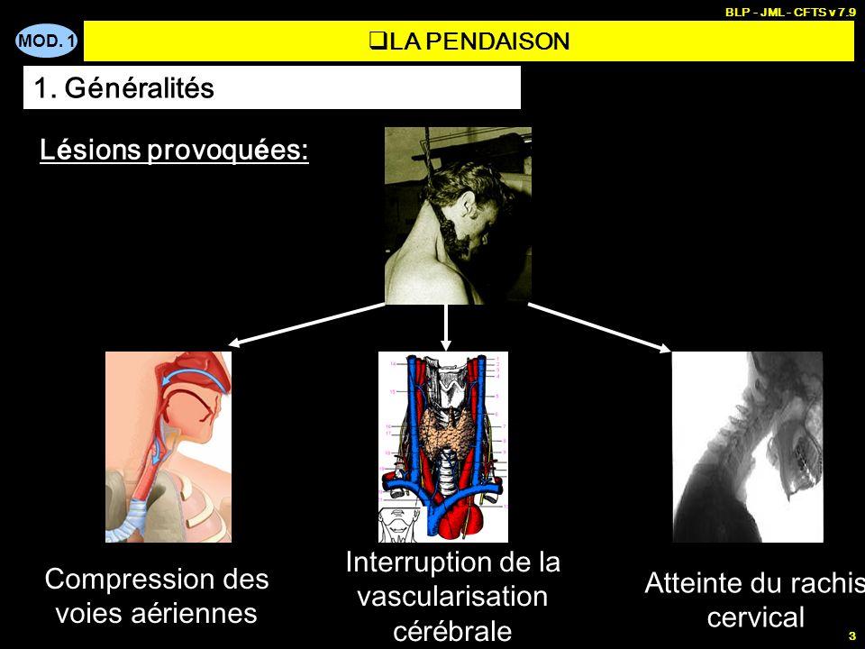 MOD. 1 BLP - JML - CFTS v 7.9 3 LA PENDAISON 1. Généralités L é sions provoqu é es: Compression des voies a é riennes Atteinte du rachis cervical Inte