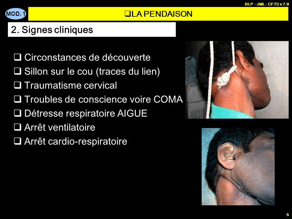 MOD. 1 BLP - JML - CFTS v 7.9 5 LA PENDAISON Circonstances de découverte Sillon sur le cou (traces du lien) Traumatisme cervical Troubles de conscienc