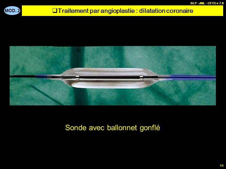 MOD. 2 BLP -JML - CFTS v 7.9 11 Sonde avec ballonnet gonflé Traitement par angioplastie : dilatation coronaire