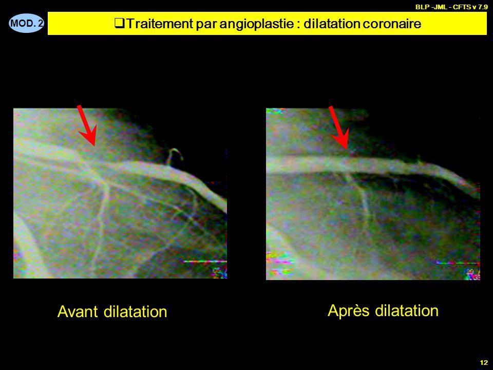 MOD. 2 BLP -JML - CFTS v 7.9 12 Avant dilatation Après dilatation Traitement par angioplastie : dilatation coronaire